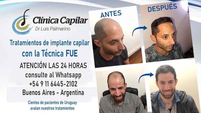 PUBLICIDAD CLINICA CAPILAR 3