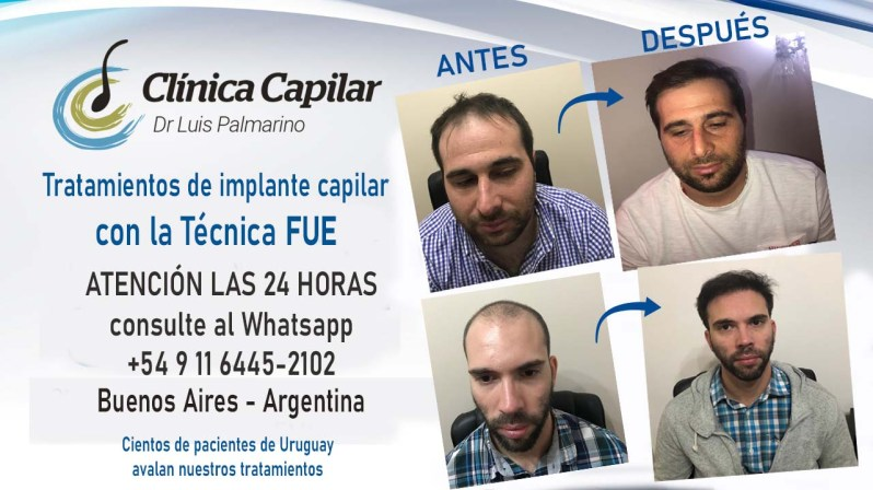 PUBLICIDAD CLINICA CAPILAR 2