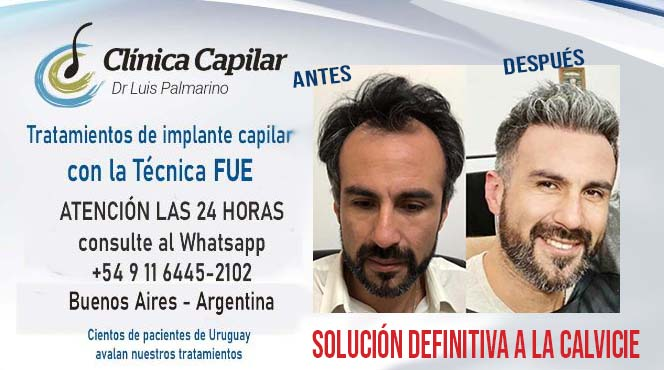 CLINICA CAPILAR DR. LUIS PALMARINO